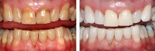 Lưu ý phục hình răng sứt mẻ đạt hiệu quả cao