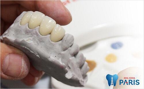 Làm cầu răng sứ 3