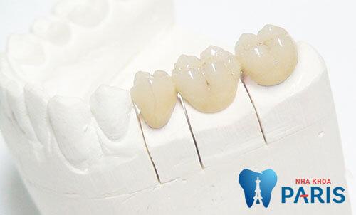 Phân loại răng sứ thẩm mỹ 4