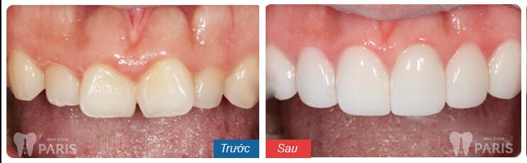 răng cửa lệch 6