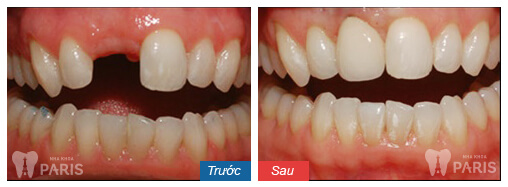 Dental-Work-before-after-06