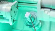 Bọc răng sứ thẩm mỹ 3