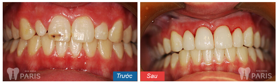 LifeCare-Dental-Cosmetic-Dentistry-Before-After