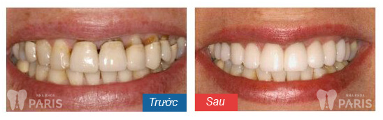 before-after-dental-crowns-02