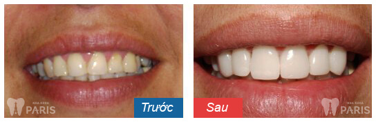 before-after-dental-veneers-03