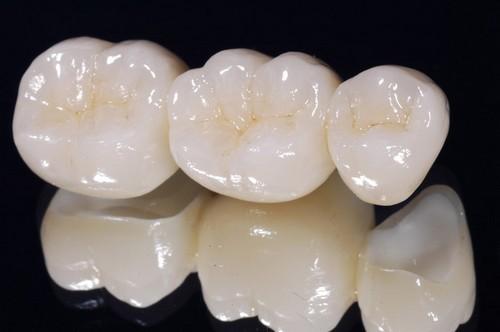 Cầu răng sứ thẩm mỹ phục hồi răng tiết kiệm 7