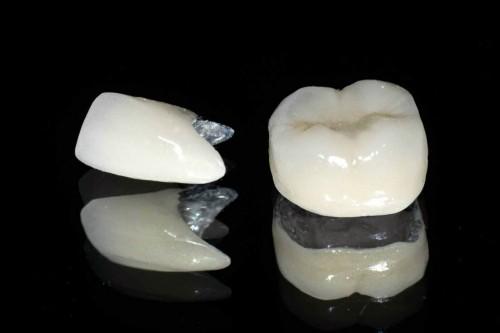 Các trường hợp nên phục hình răng sứ 1