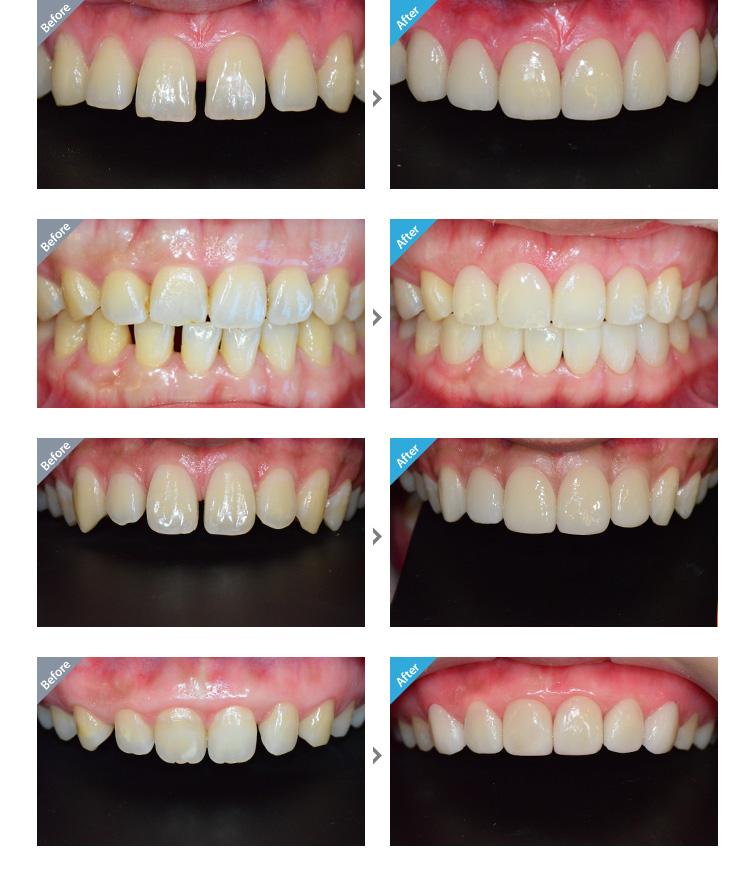 Các trường hợp nên phục hình răng sứ :răng thưa, sứt, xỉn màu, răng lệch, không đều