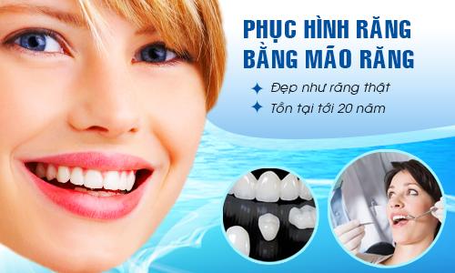 Những điều cần tìm hiểu kỹ trước khi bọc răng sứ