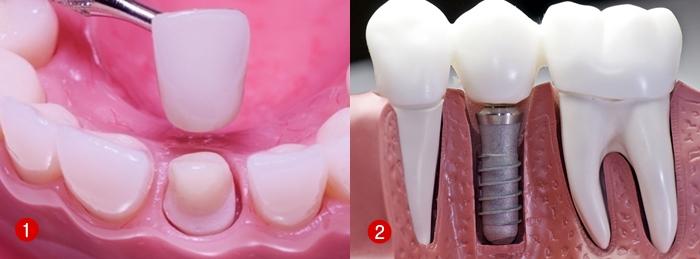 Chụp răng sứ thẩm mỹ Nano Shining 5S - giải pháp hàng đầu cho răng xấu