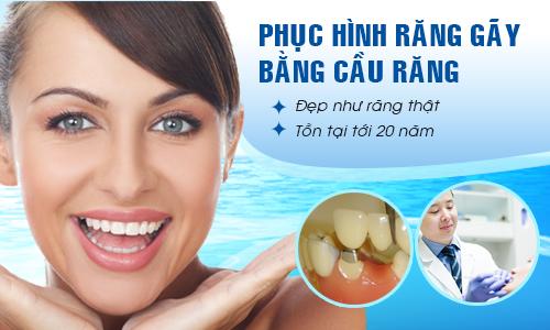 Cầu răng sứ giải pháp phục hình thẩm mỹ cho răng sứ
