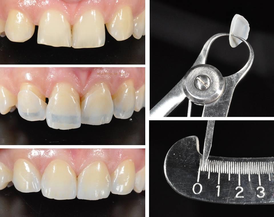 Công nghệ Nano Shining 5S - giải pháp phục hình răng thế hệ mới 4