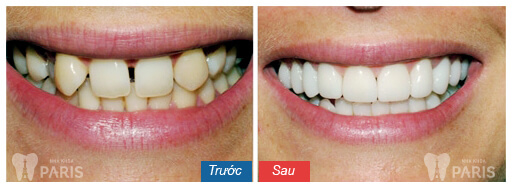 dental-crowns-before-and-after