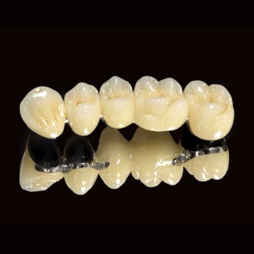 Độ bền của răng sứ thẩm mỹ là bao lâu thưa bác sỹ