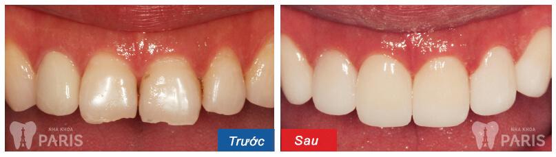 Mặt dán Veneer sứ - Bí mật của hàm răng hoàn hảo 9