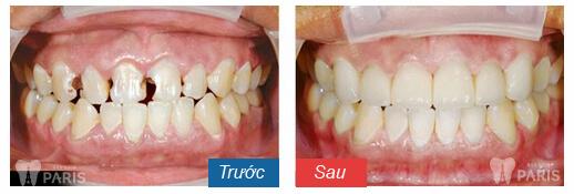 kết quả bọc răng sứ uy tín tại hà nội