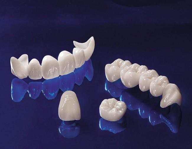 Chụp răng sứ thẩm mỹ tại Nha Khoa Paris cho răng bền đẹp