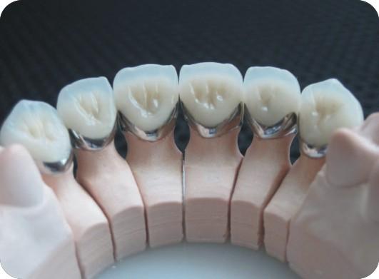 Chụp răng sứ thẩm mỹ Nano Shining 5S - giải pháp tuyệt vời cho răng xấu 6