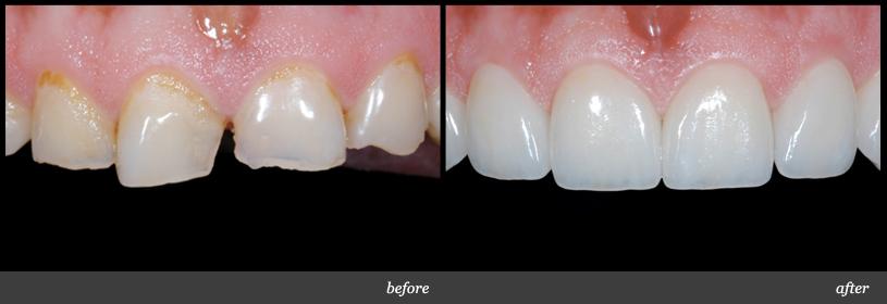 Trám răng thưa thẩm mỹ có bền không ?