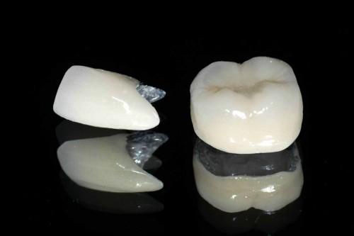 Lời khuyên có nên làm răng sứ Titan cho răng vỡ hay không