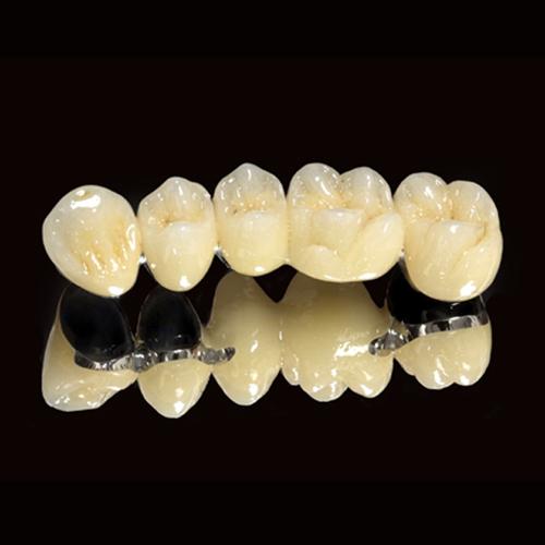 Làm cầu răng bằng sứ kim loại có tốt, bền đẹp không?