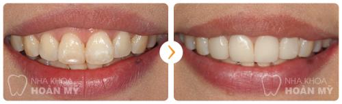 Mức giá bọc răng sứ Emax tốt nhất là bao nhiêu