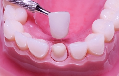 Kinh nghiệm làm răng sứ đơn giản bạn nên biết