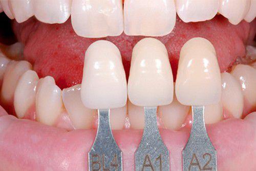 Bọc răng sứ KHÔNG cần mài răng cho hàm răng ĐỀU & ĐẸP như ý 1