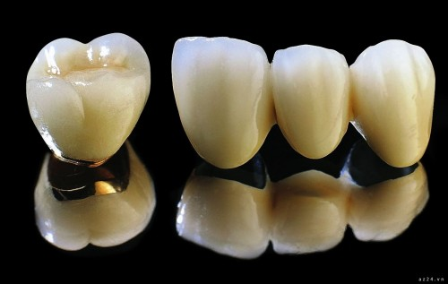 cách nhận biết răng sứ Titan khi bọc sứ