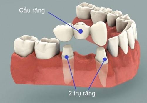 Phương pháp làm cầu răng có đau không? 1