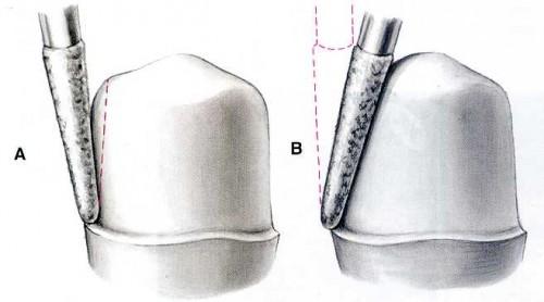 Quy trình bọc răng hàm có gây đau nhức hay không 2