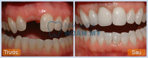 Làm răng sứ không kim loại bao nhiêu là hợp lý