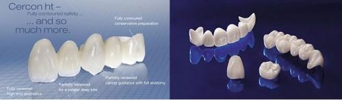 Ưu điểm vượt trội của bọc răng sứ cercon 1