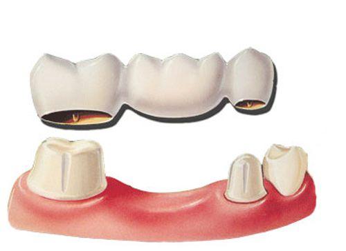 Cách chăm sóc cầu răng như thế nào để duy trì bền lâu