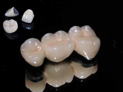 Chăm sóc răng sứ Titan