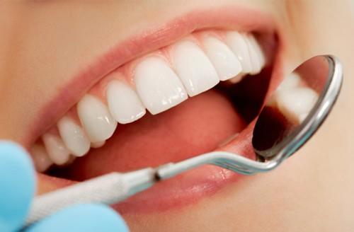 Chăm sóc răng sứ Titan để có hàm răng đẹp