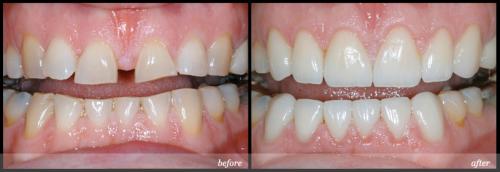 Làm chụp răng sứ cho răng thưa tại nha khoa Paris