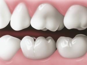 Bọc răng sứ giá rẻ nhất ở đâu?1