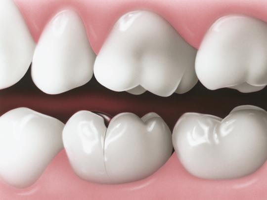 Răng sứ bị nứt ngang có cần bọc lại hay không?