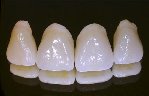 Răng sứ sau khi phục hình có bền chắc không? 2