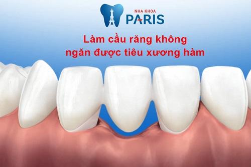 Tại sao bạn cần lựa chọn làm cầu răng ở đâu tốt? 3