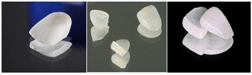 3 ưu điểm nổi bật khi sử dụng mặt dán sứ Veneer 1