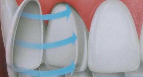 3 ưu điểm nổi bật khi sử dụng mặt dán sứ Veneer 4