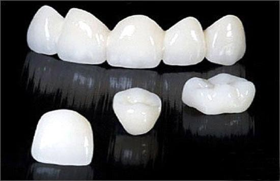 Cách khắc phục răng bị thưa bằng bọc sứ