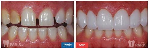 Kinh nghiệm chụp răng sứ để có hàm răng đẹp