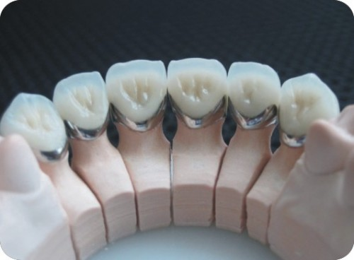 Cách mài cùi răng sứ đúng Kỹ Thuật bộ y tế, An Toàn, Không Ê Buốt 2