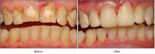 Có nên bọc sứ cho răng bị thiểu sản men răng
