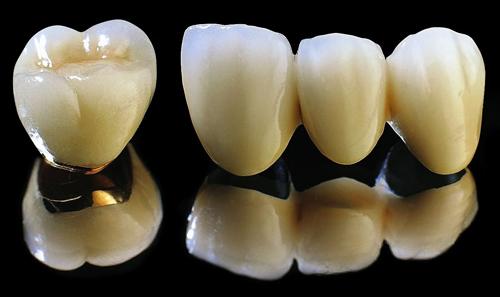 Giá bọc răng sứ titan rẻ nhất là bao nhiêu