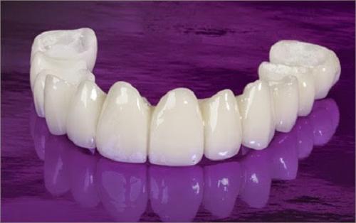 3 Lưu ý trước khi bọc răng sứ để bạn có sự chuẩn bị tốt nhất 1