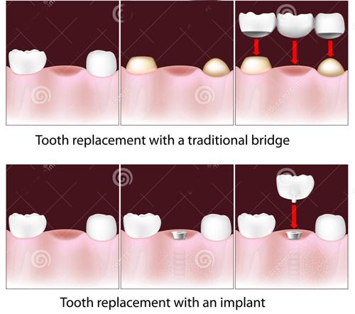 Cầu răng đảm bảo chức ăn nhai tốt giống như răng thật